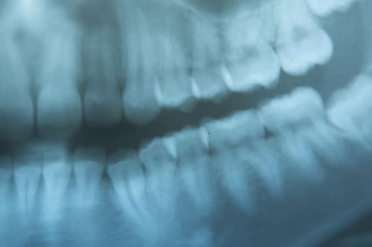 Data Dimensions - Dental X-Ray Imaging
